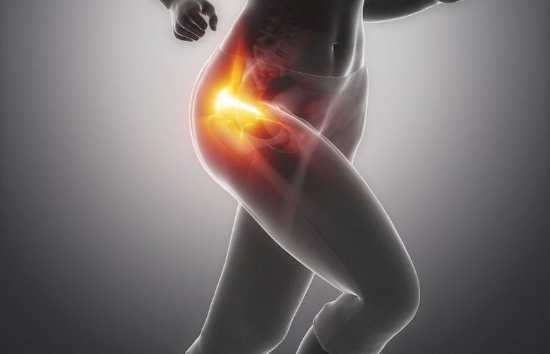 sintomas y tratamiento de pubalgia